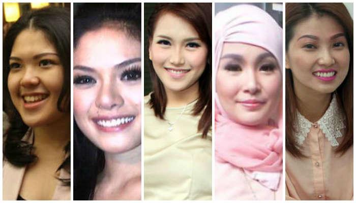5 Artis Indonesia yang Lakukan Sulam Alis