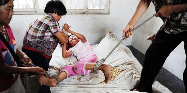 STORY: Sering Mengamuk, Seorang Ibu Terpaksa Ikat Anaknya