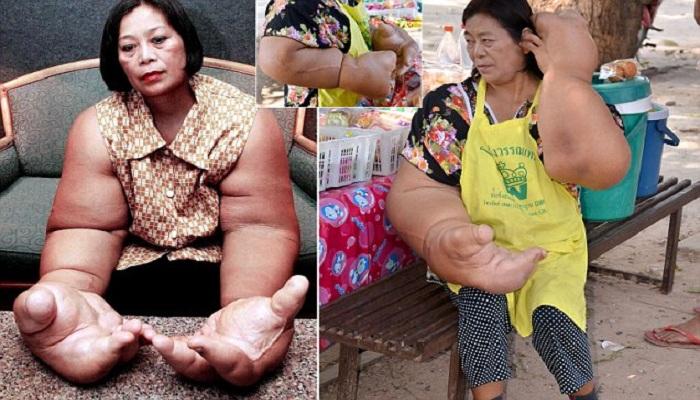 Duangjay Samaksamam, Wanita Pemilik Tangan Terbesar di Dunia