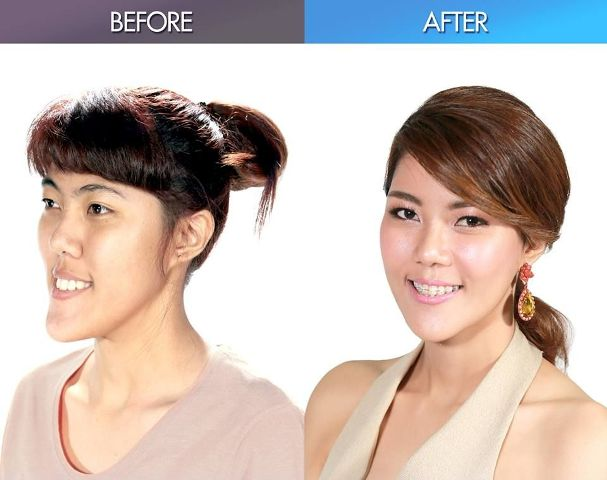 Jane Before After (bangkok.coconuts.com)