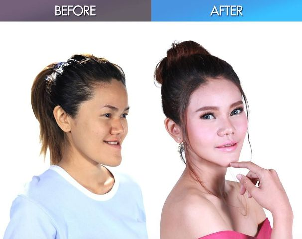 Mint Before After (bangkok.coconuts.com)