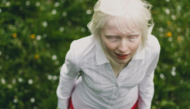 Albino (Spunfish)