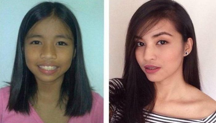 Transformasi Gadis dari Jelek Hingga Cantik Luar Biasa